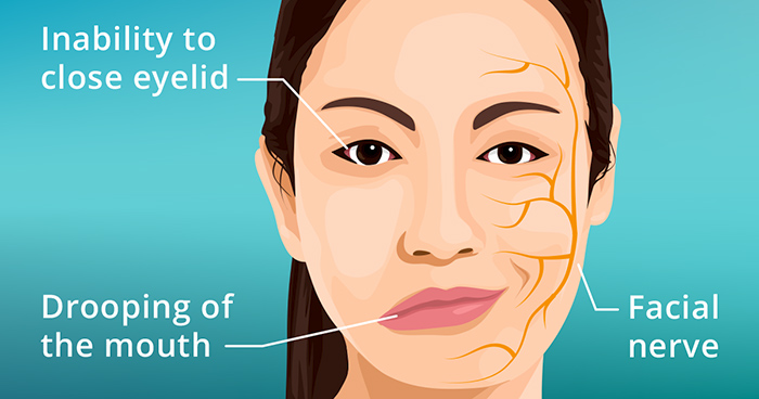 bell's palsy treatment