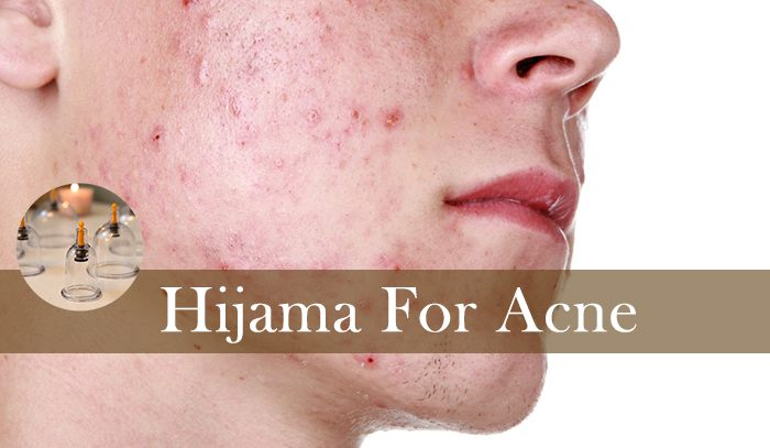 Hijama for Acne Treatment in Lahore | Physiotherapy Hospital