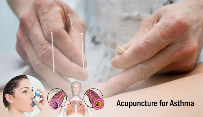 Acupuncture for Asthma treatment