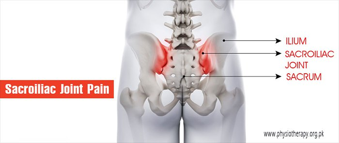sacroiliac joint pain treatment