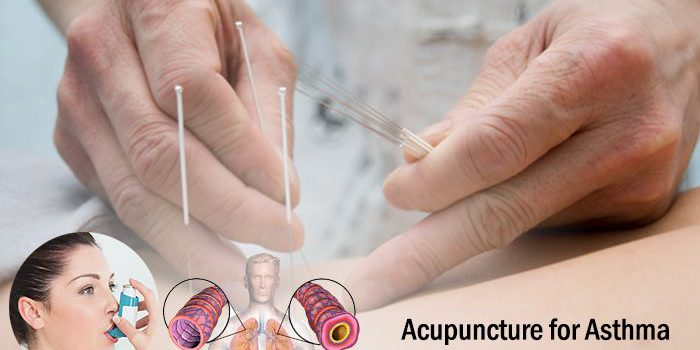 Acupuncture for Asthma Treatment in Lahore | Best Doctor ...