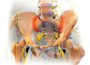 sacroiliac treatment