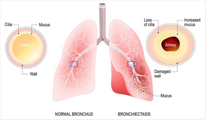 Bronchiectasis treatment in Lahore